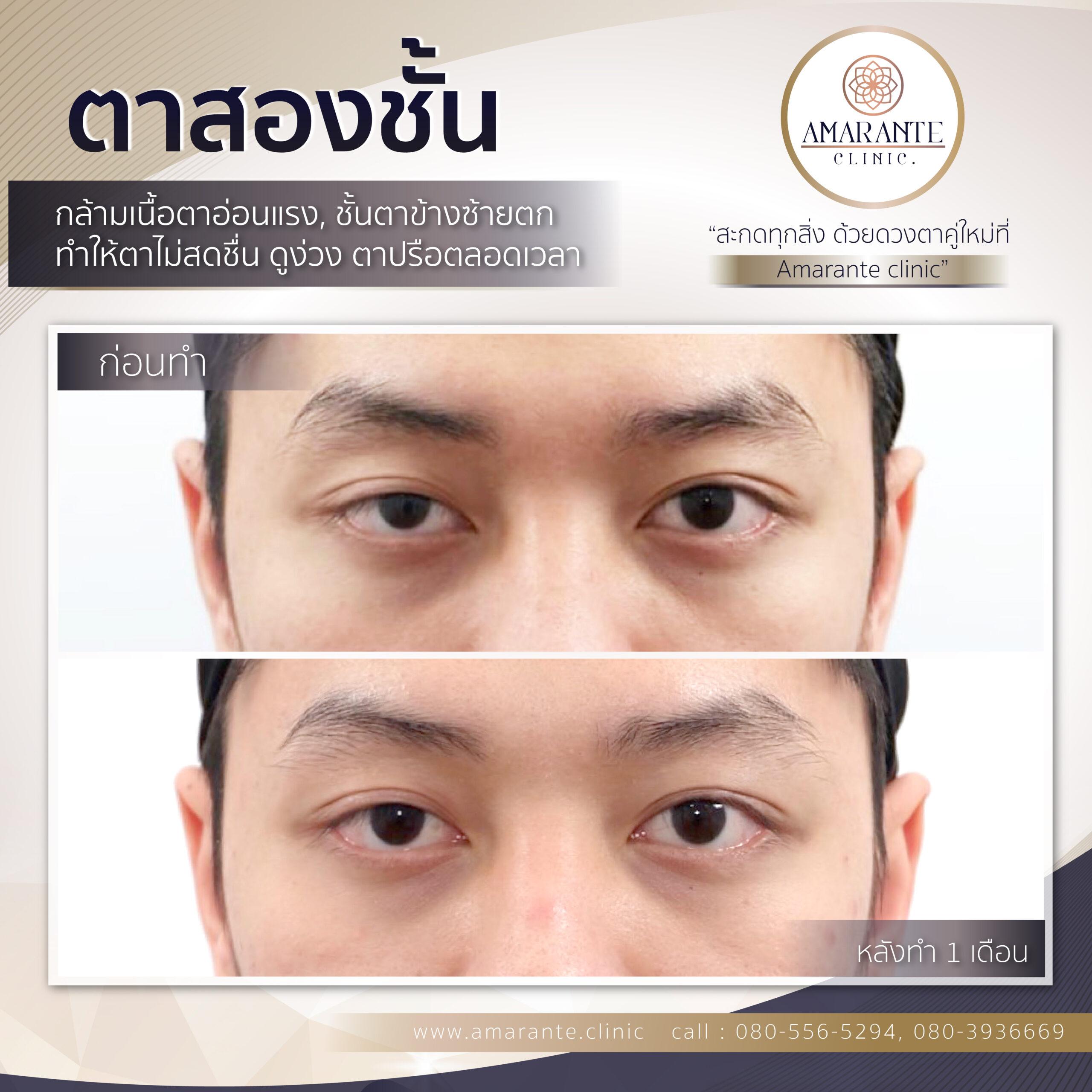 กล้ามเนื้อตาอ่อนแรง ตาสองชั้น หนังตาตก ชั้นตาไม่ชัด